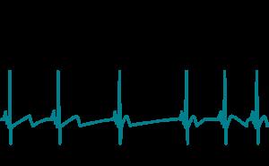 Frequenza cardiaca e variabilità cardiaca